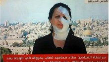 Video footage: Hana Mahameed returned to reporting for the Lebanon-based Mayadeen TV with bandages covering the parts of her face burned by a stun grenade.