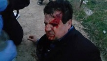 MK Ayman Odeh on the ground after having been injured in the clashes at Umm al-Hiran