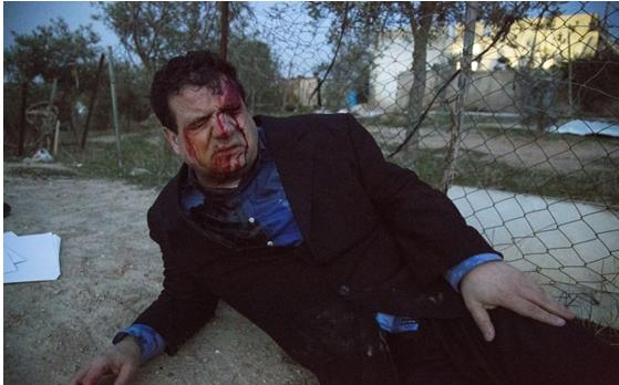 Hadash MK Ayman Odeh wounded by the police in Umm al-Hiran on January 18, 2017