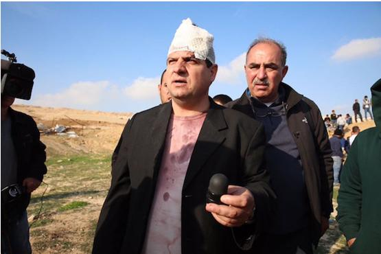 Joint List chairman MK Ayman Odeh (Hadash) holding the sponge-tipped bullet he says was shot at him by Israeli forces in Umm al-Hiran, January 18, 2017