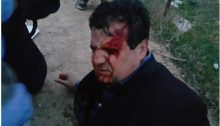MK Odeh after his wounding by police at Umm al Hiran, January 18, 2017