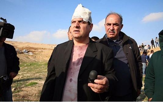 Joint List leader MK Ayman Odeh (Hadash) was wounded during the protest against house demolitions in the unrecognized Bedouin village of Umm al-Hiran in the Negev on January 18, 2017. Here Odeh is holding the sponge-tipped bullet that injured him.