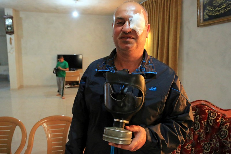 Xinhua photographer Nidal Shtayyeh, who was shot in the thigh by a rubber-coated metal bullet on April 19 while covering the Israeli army crackdown on the weekly protests in Kufr Qaddoum, is seen here after having been shot in the eye by an Israeli soldier while he was covering a demonstration in June 2015.