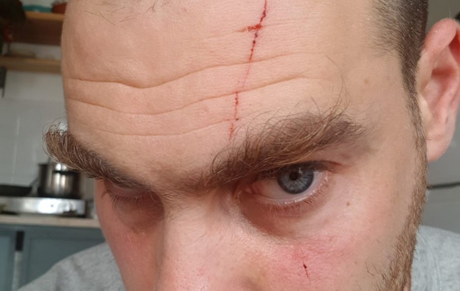 Anti-occupation Activist Jonathan Pollak after he was attacked by right-wing ruffians in Tel Aviv on Sunday, July 7