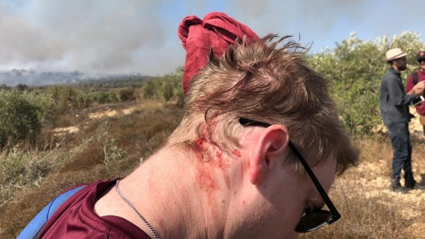 An Israeli activist who was attacked by settlers in the Palestinian village of Burin in the northern West Bank, October 16, 2019