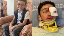 Malek Issa, 9-year-old resident of occupied al-Issawiya, before and after he was shot by Israeli police
