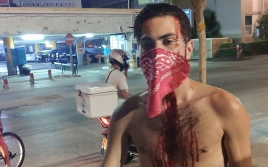 One of the protestors attacked by fascists as he and hundreds of others demonstrated in Tel Aviv late Tuesday evening, July 28, against PM Netanyahu, Public Security Minister Amir Ohana, and police brutality