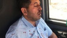 Palestinian bus driver Muhammad al-Qaq, 47, was assaulted near the occupied West Bank settlement of Shvut Rachel by a 21-year-old Israeli settler who refused to wear a face mask in the sealed bus, August 13, 2021.